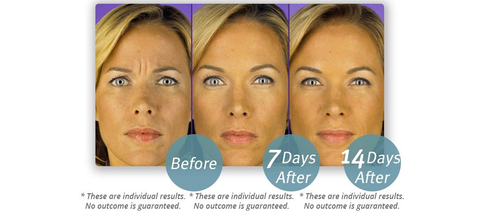 Botox Cosmetic in Metairie LA - Chronos Body Health Wellness