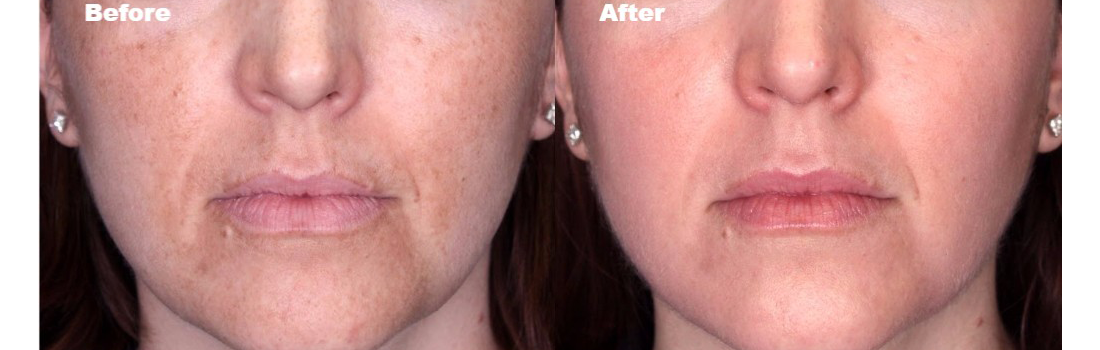 What Is That Dark Skin Patches On My Face? - Chronos Body | Health