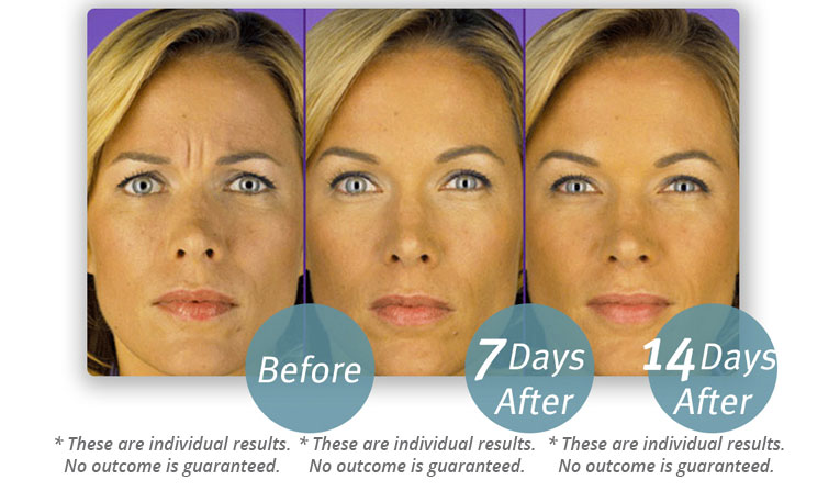 Botox® Cosmetic - Chronos Body | Health | Wellness